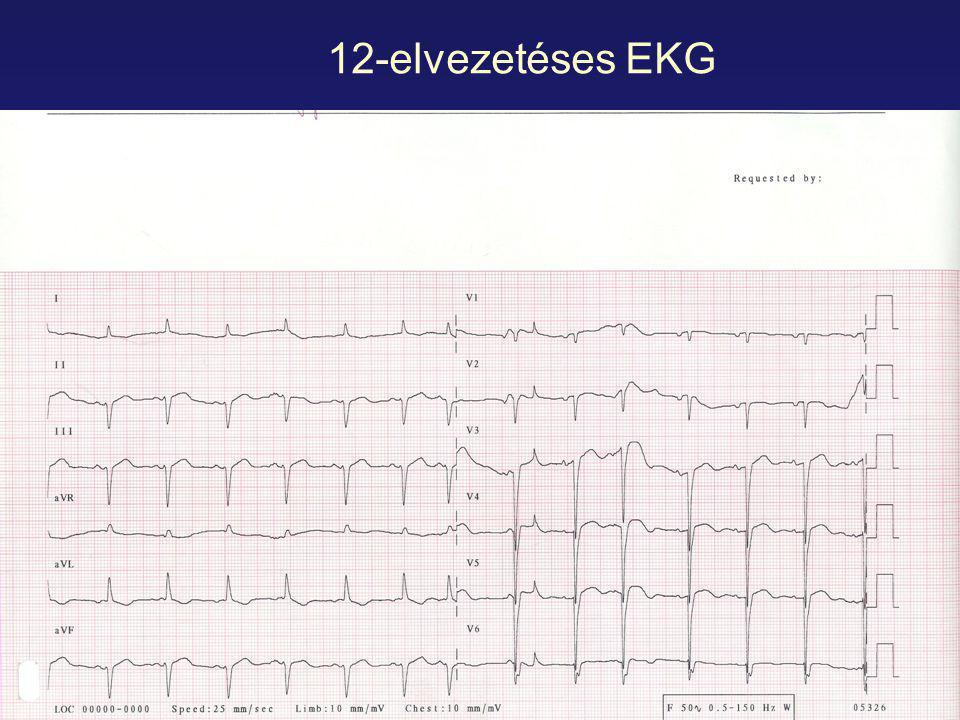 12-elvezetéses EKG