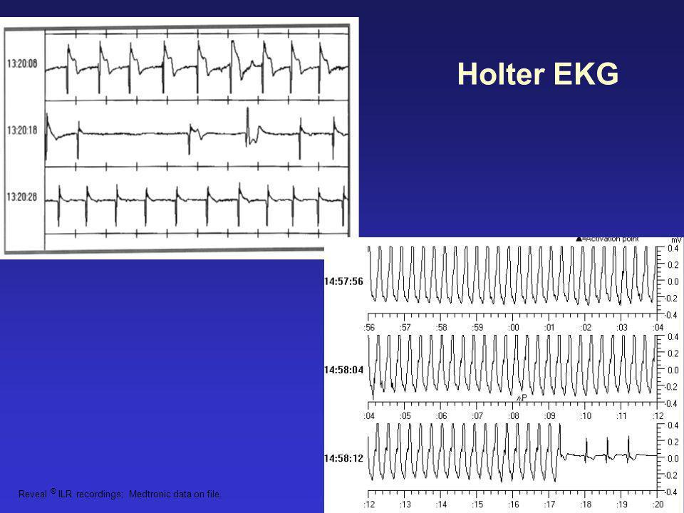 Reveal ® ILR recordings; Medtronic data on file. Holter EKG