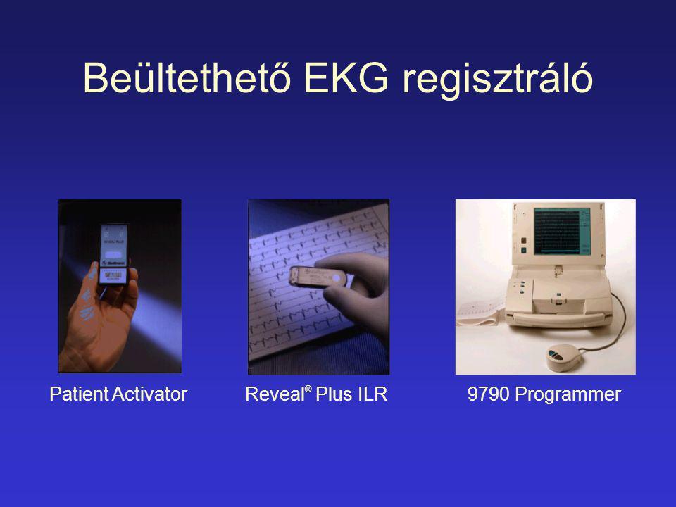 Patient ActivatorReveal ® Plus ILR9790 Programmer Beültethető EKG regisztráló