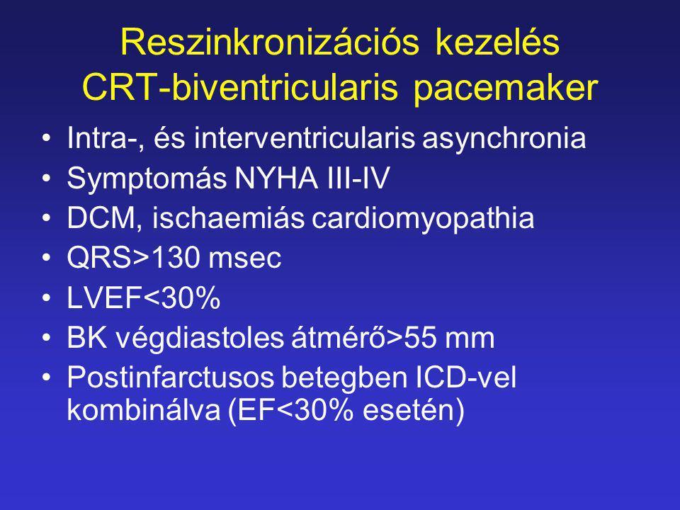 Reszinkronizációs kezelés CRT-biventricularis pacemaker Intra-, és interventricularis asynchronia Symptomás NYHA III-IV DCM, ischaemiás cardiomyopathi