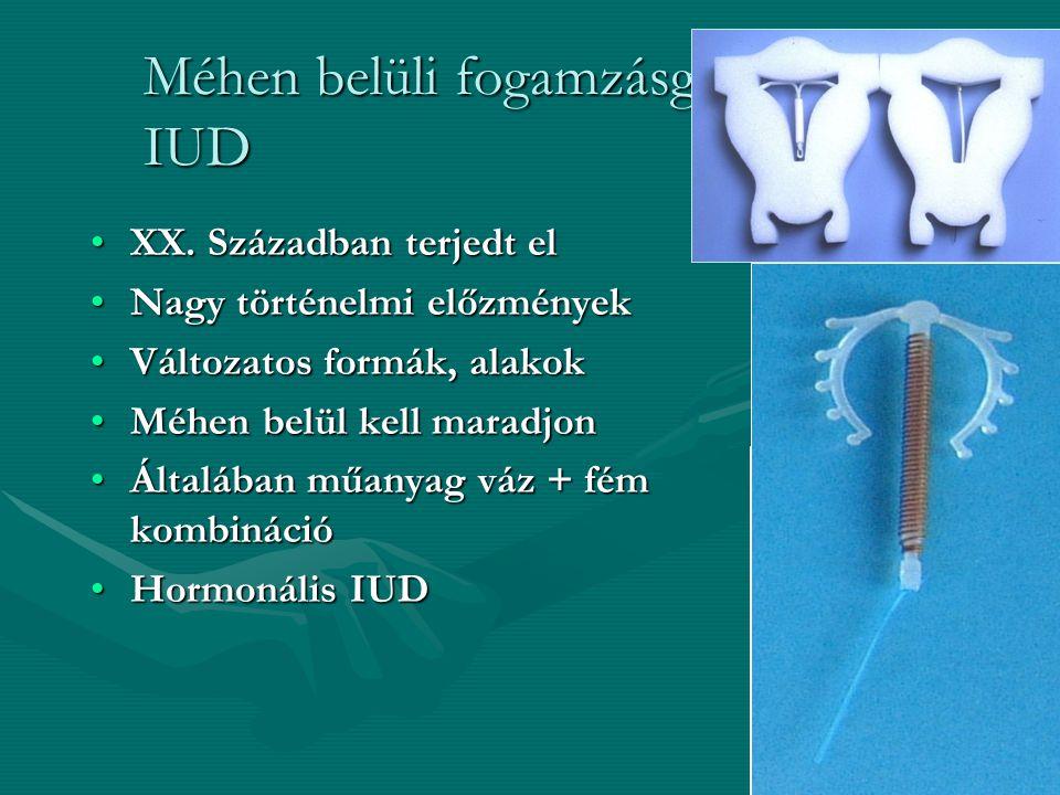 Méhen belüli fogamzásgátló eszköz- IUD XX.Században terjedt elXX.