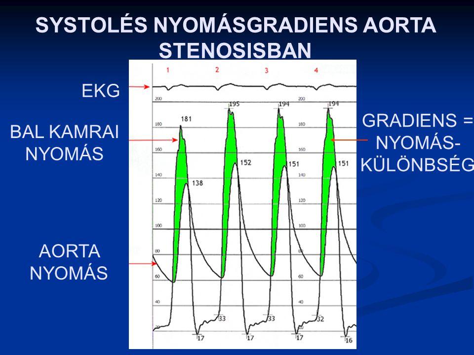 AORTA STENOSIS A NORMÁLIS AORTA BILLENTYŰ AREA: 3-4 cm 2 (Megnyílásakor ekkorra keresztmetszeten áramlik át a vér) HA AZ AREA < 2 cm 2 – AORTA STENOSI