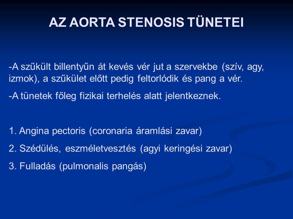 AZ AORTA STENOSIS VIZSGÁLATA 1. Fizikális:- pulzus : tardus et parvus (lassan emelkedik és alacsony az amplitúdója) - hallgatózás: ejekciós systolés z