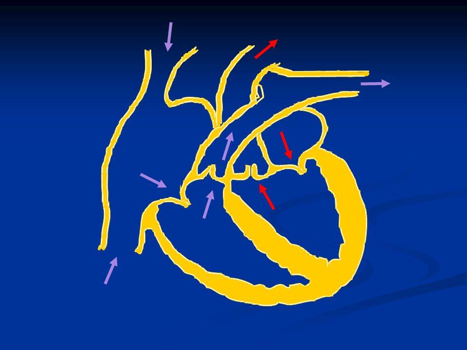 Áramlási obstrukciót – regurgitációt okozó congenitális vitiumok Bal pitvarban: cor triatriátum Bal pitvarban: cor triatriátum Bal kamrában – subaorticus membrán Bal kamrában – subaorticus membrán congenitális ASI congenitális ASI coarctációs aortae coarctációs aortae Jobb kamrában: Jobb kamrában: valvuláris pulm.
