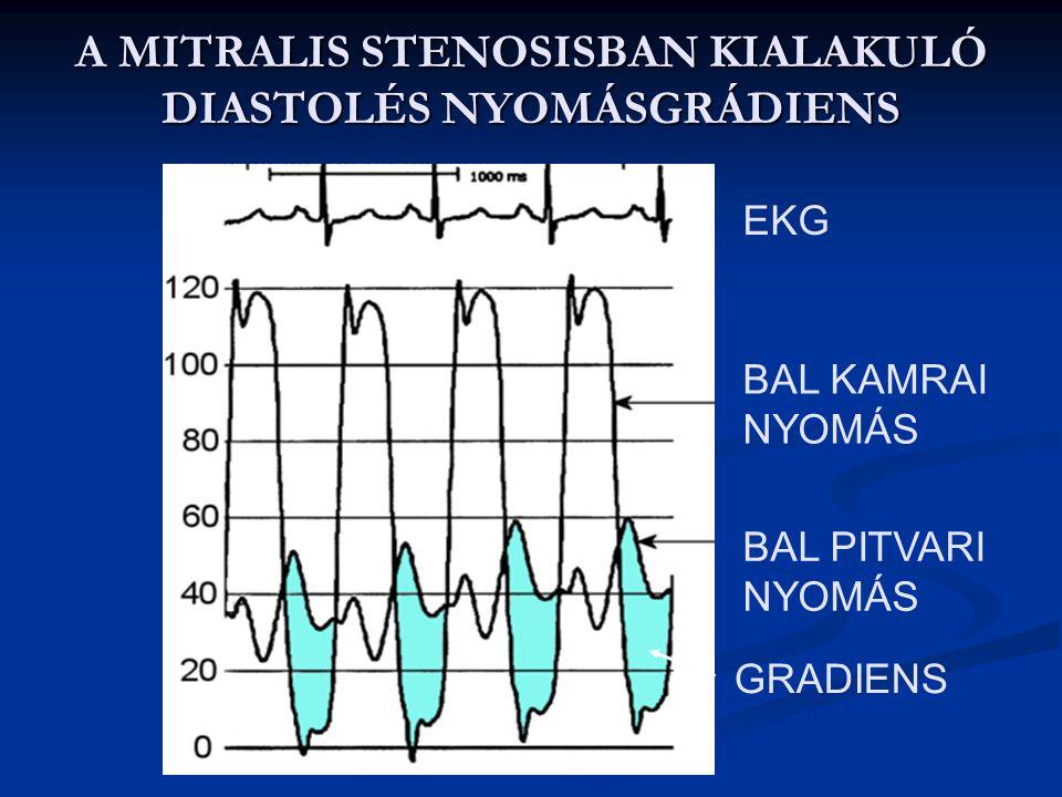 A MITRALIS STENOSIS OKAI, TÜNETEI 1.Oka: rheumás láz – főleg nőknél fordul elő, itt is ritkán. 2. Tünetei: - a bal pitvarban torlódó vér miatt pulmona