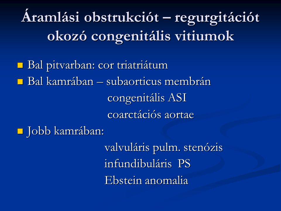 Felosztás Felnőttkorban felfedezett, addig panaszt nem okozó congenitális vitium Felnőttkorban felfedezett, addig panaszt nem okozó congenitális vitiu