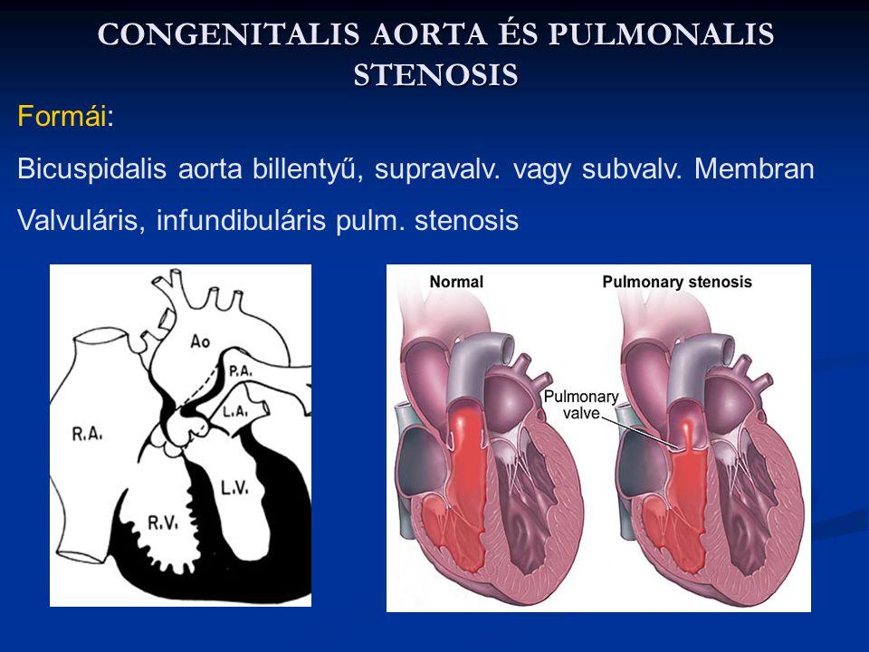 A congenitális szívbetegeségek felosztása Congenitális stenózisok: Congenitális stenózisok: Subvalvuláris Subvalvuláris Valvuláris Valvuláris Supraval