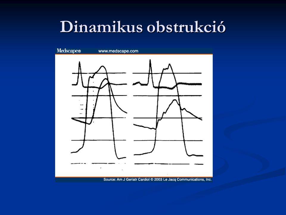 Supravalvularis aorta stanózis