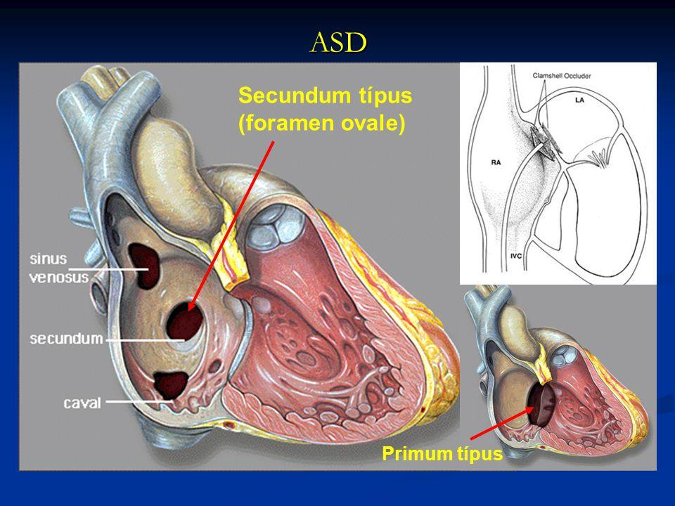 PITVARI SEPTUM DEFECTUS (ASD) 1.Formái: primum / secundum / sinus venosus típus mitralis hasadásv. pulmonalis transpositioVSD társulhat hozzá társulha