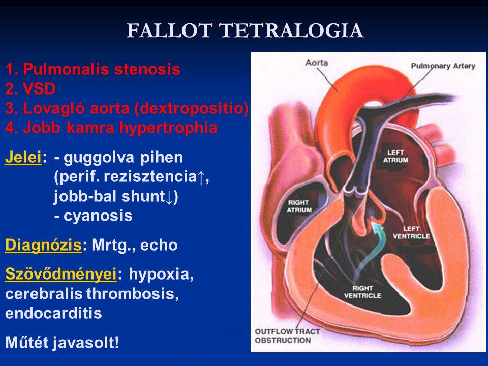 COARCTATIO AORTA 1.Morfológia: az aorta ív és descendens határán a Botall vezetékkel szemben az aorta beszűkül 2.Következmény / diagnózis: RR felső te