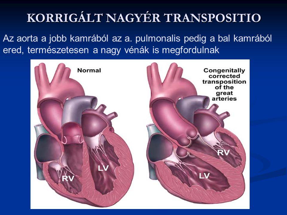 FALLOT TETRALOGIA 1. Pulmonalis stenosis 2. VSD 3. Lovagló aorta (dextropositio) 4. Jobb kamra hypertrophia Jelei: - guggolva pihen (perif. rezisztenc