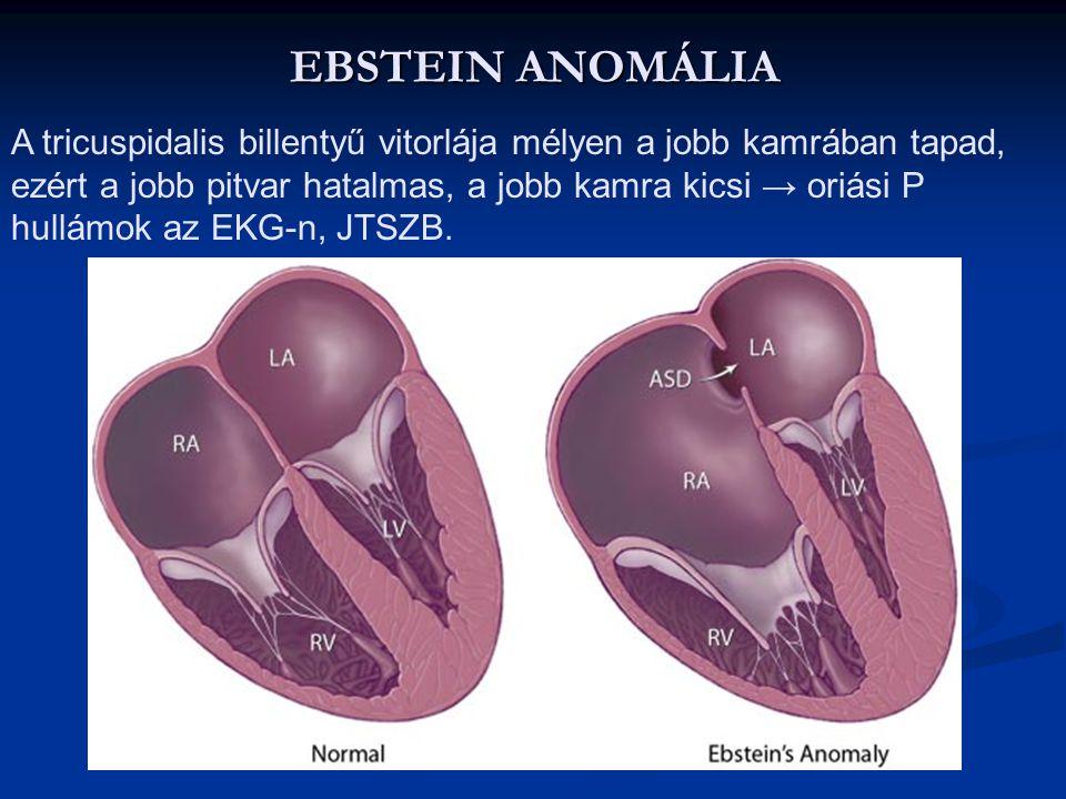 KORRIGÁLT NAGYÉR TRANSPOSITIO Az aorta a jobb kamrából az a. pulmonalis pedig a bal kamrából ered, természetesen a nagy vénák is megfordulnak