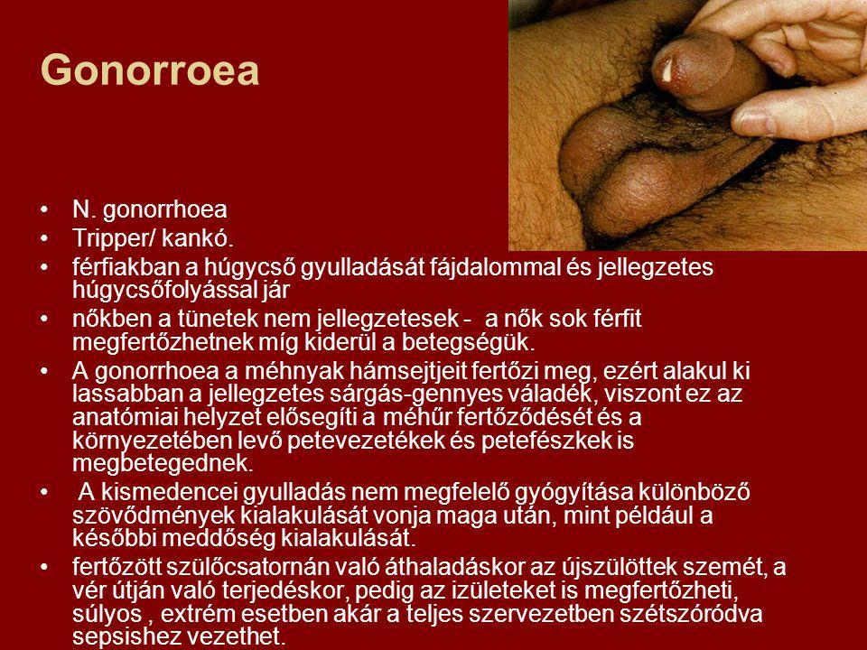 Gonorroea N. gonorrhoea Tripper/ kankó. férfiakban a húgycső gyulladását fájdalommal és jellegzetes húgycsőfolyással jár nőkben a tünetek nem jellegze