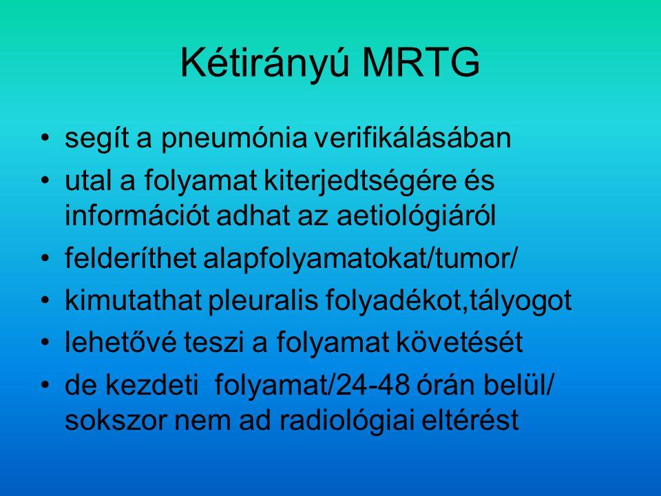 Kétirányú MRTG segít a pneumónia verifikálásában utal a folyamat kiterjedtségére és információt adhat az aetiológiáról felderíthet alapfolyamatokat/tumor/ kimutathat pleuralis folyadékot,tályogot lehetővé teszi a folyamat követését de kezdeti folyamat/24-48 órán belül/ sokszor nem ad radiológiai eltérést