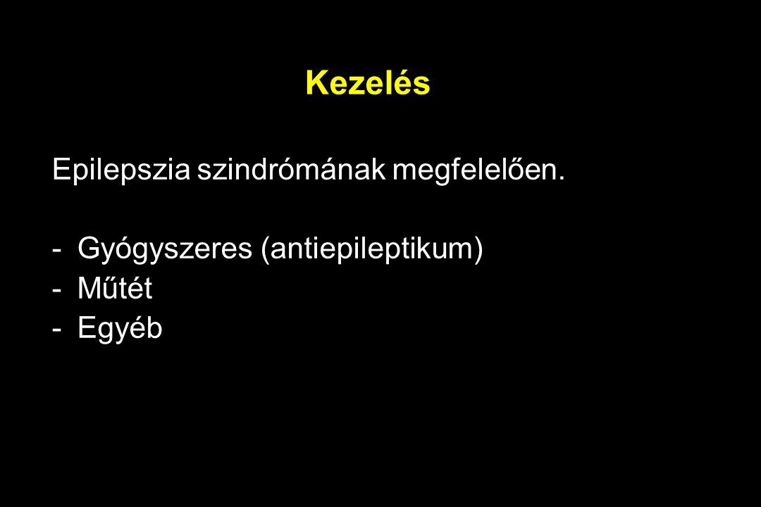 Kezelés Epilepszia szindrómának megfelelően. -Gyógyszeres (antiepileptikum) -Műtét -Egyéb