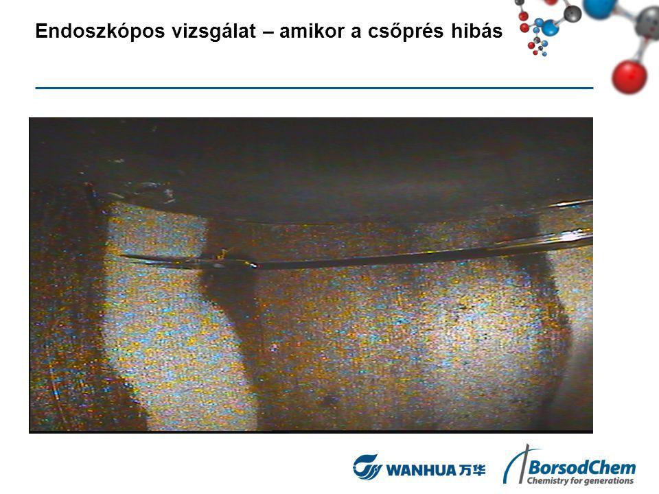 Endoszkópos vizsgálat – amikor a csőprés hibás