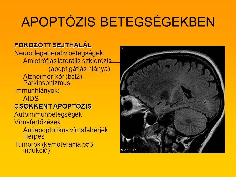 APOPTÓZIS BETEGSÉGEKBEN FOKOZOTT SEJTHALÁL Neurodegenerativ betegségek: Amiotrófiás laterális szklerózis (apopt gátlás hiánya) Alzheimer-kór (bcl2), P