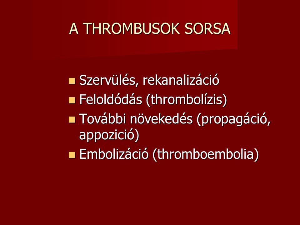 A THROMBUSOK SORSA Szervülés, rekanalizáció Szervülés, rekanalizáció Feloldódás (thrombolízis) Feloldódás (thrombolízis) További növekedés (propagáció