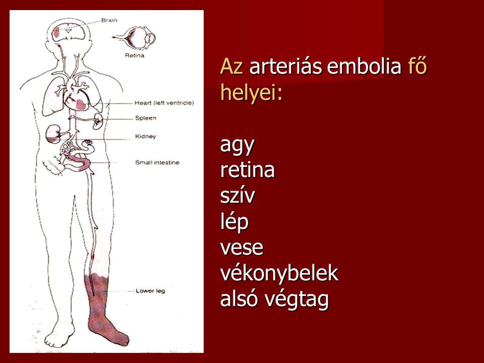 Az arteriás embolia fő helyei: agy retina szív lép vese vékonybelek alsó végtag