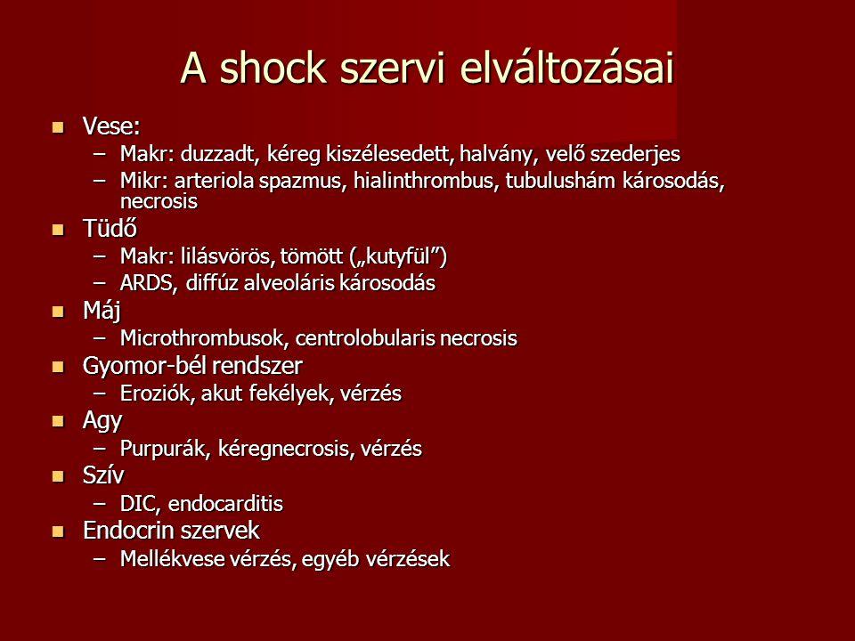 A shock szervi elváltozásai Vese: Vese: –Makr: duzzadt, kéreg kiszélesedett, halvány, velő szederjes –Mikr: arteriola spazmus, hialinthrombus, tubulus
