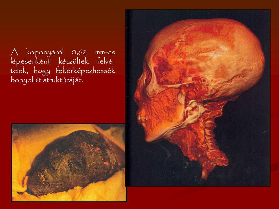 A koponyáról 0,62 mm-es lépésenként készültek felvé- telek, hogy feltérképezhessék bonyolult struktúráját.
