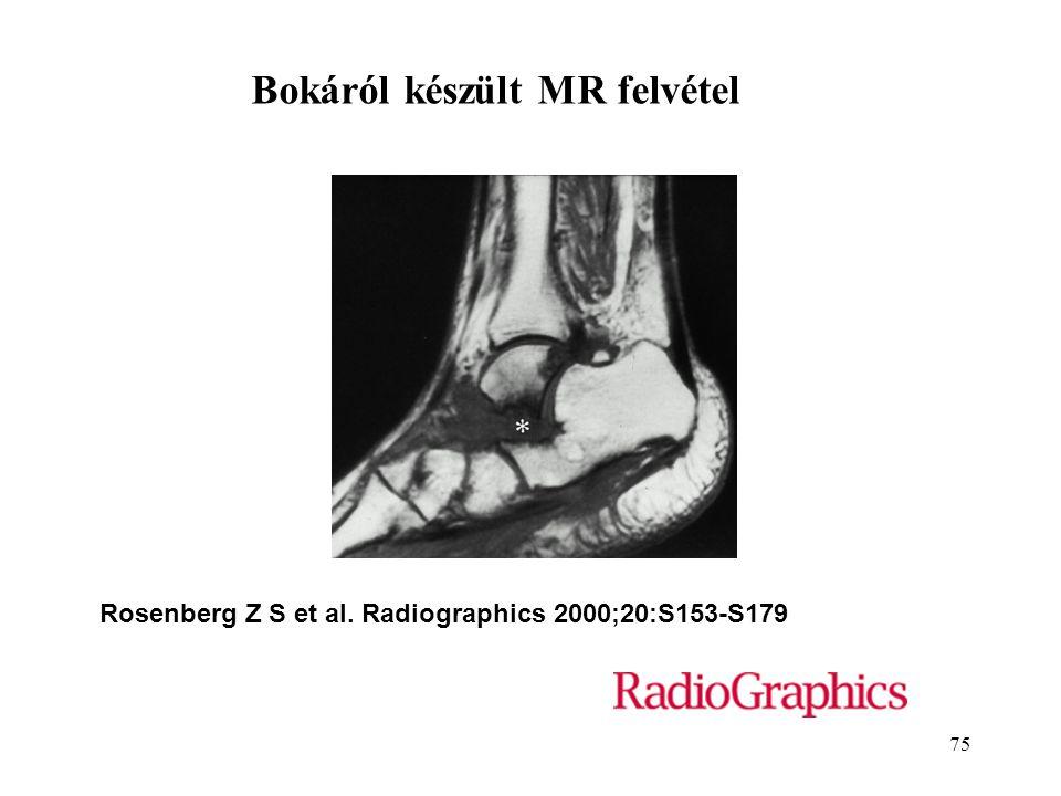 75 Rosenberg Z S et al. Radiographics 2000;20:S153-S179 Bokáról készült MR felvétel