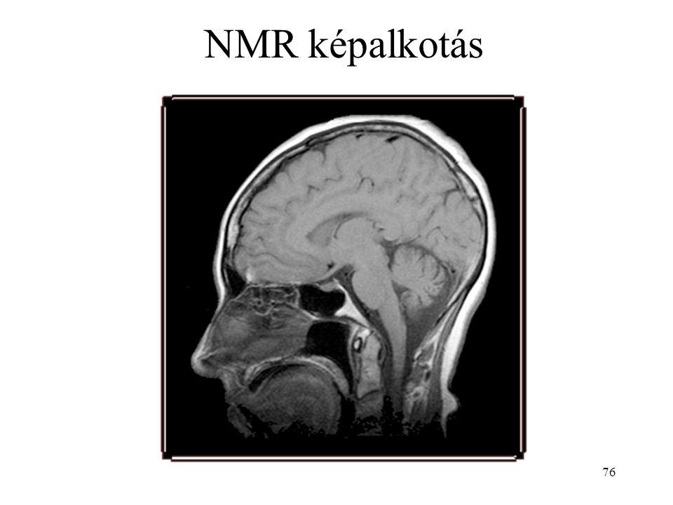 76 NMR képalkotás
