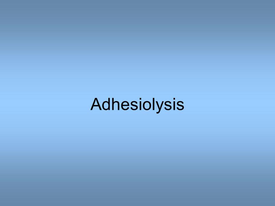 Adhesiolysis