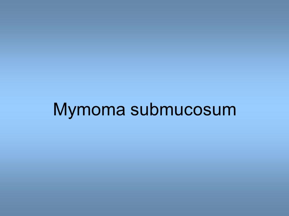 Mymoma submucosum