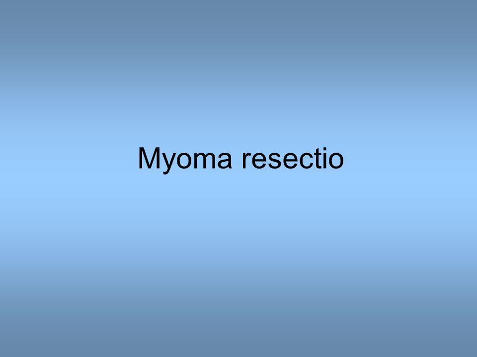 Myoma resectio
