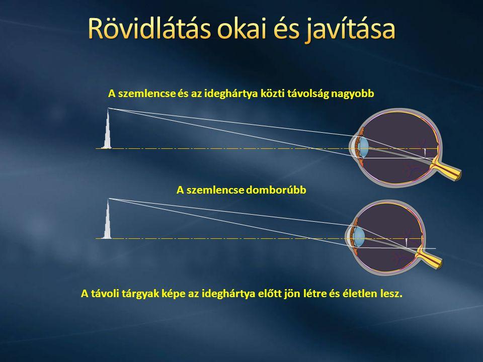 A rövidlátó szem csak a közeli tárgyakat látja élesen A rövidlátást szórólencsékkel lehet javítani