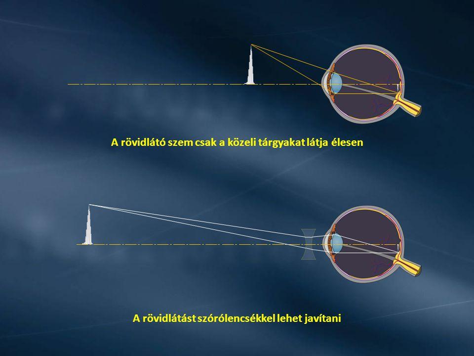 A szemlencse és az ideghártya közti távolság kisebb A szemlencse kevésbé domború A közeli tárgyak képe az ideghártya után jön létre és életlen lesz.
