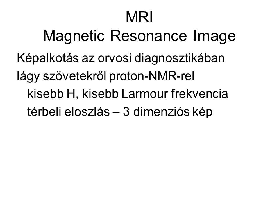 MRI Magnetic Resonance Image Képalkotás az orvosi diagnosztikában lágy szövetekről proton-NMR-rel kisebb H, kisebb Larmour frekvencia térbeli eloszlás