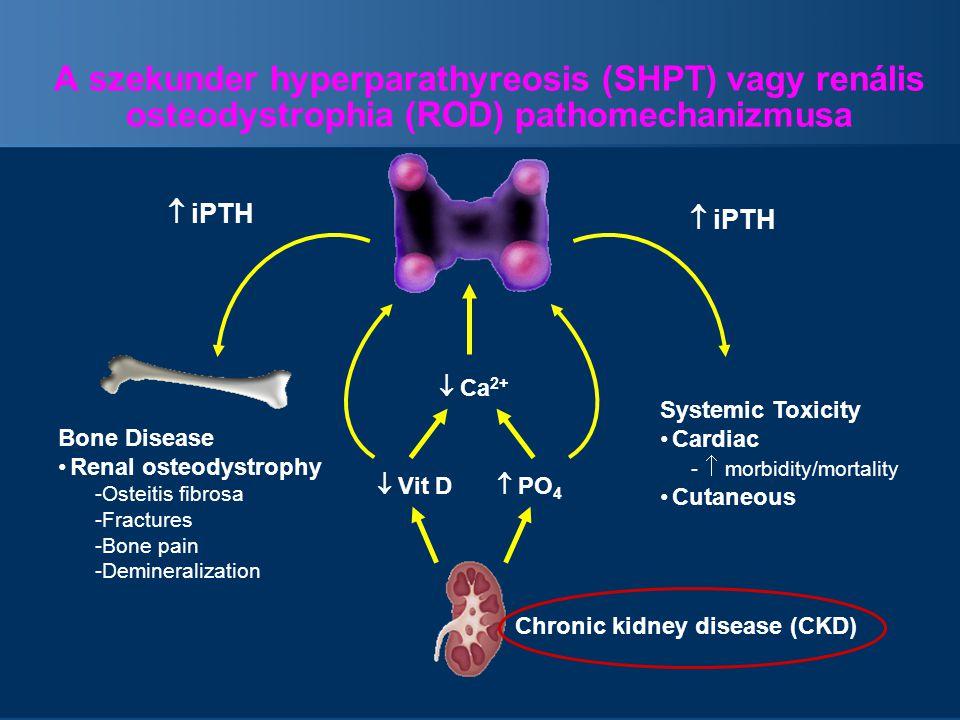 A szekunder hyperparathyreosis (SHPT) vagy renális osteodystrophia (ROD) pathomechanizmusa  iPTH Bone Disease Renal osteodystrophy -Osteitis fibrosa