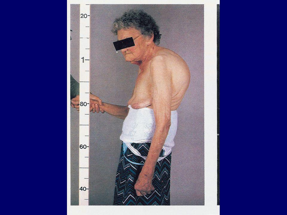 """Klinikai konzekvenciák - szimptómák Fokozott háti kyphosis Testmagasság csökkenése """"golyó has – diff."""