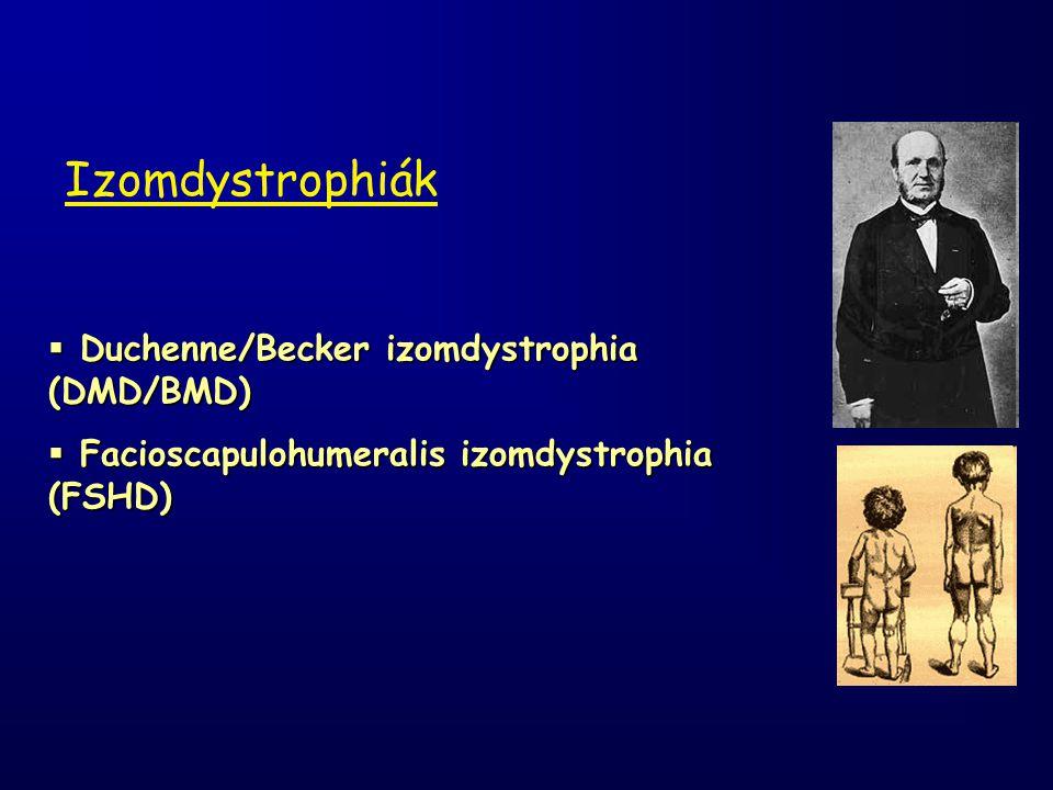  Duchenne/Becker izomdystrophia (DMD/BMD)  Facioscapulohumeralis izomdystrophia (FSHD) Izomdystrophiák