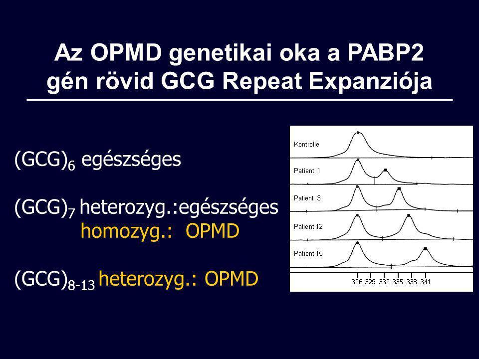 Az OPMD genetikai oka a PABP2 gén rövid GCG Repeat Expanziója (GCG) 6 egészséges (GCG) 7 heterozyg.:egészséges homozyg.: OPMD (GCG) 8-13 heterozyg.: O