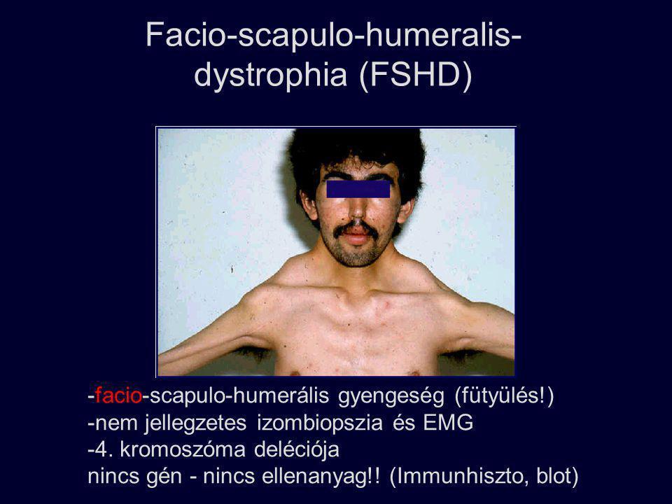 Facio-scapulo-humeralis- dystrophia (FSHD) -facio-scapulo-humerális gyengeség (fütyülés!) -nem jellegzetes izombiopszia és EMG -4. kromoszóma deléciój