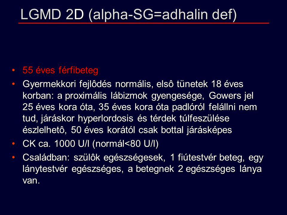 LGMD 2D (alpha-SG=adhalin def) 55 éves férfibeteg55 éves férfibeteg Gyermekkori fejlôdés normális, elsô tünetek 18 éves korban: a proximális lábizmok gyengesége, Gowers jel 25 éves kora óta, 35 éves kora óta padlóról felállni nem tud, járáskor hyperlordosis és térdek túlfeszülése észlelhetô, 50 éves korától csak bottal járásképesGyermekkori fejlôdés normális, elsô tünetek 18 éves korban: a proximális lábizmok gyengesége, Gowers jel 25 éves kora óta, 35 éves kora óta padlóról felállni nem tud, járáskor hyperlordosis és térdek túlfeszülése észlelhetô, 50 éves korától csak bottal járásképes CK ca.