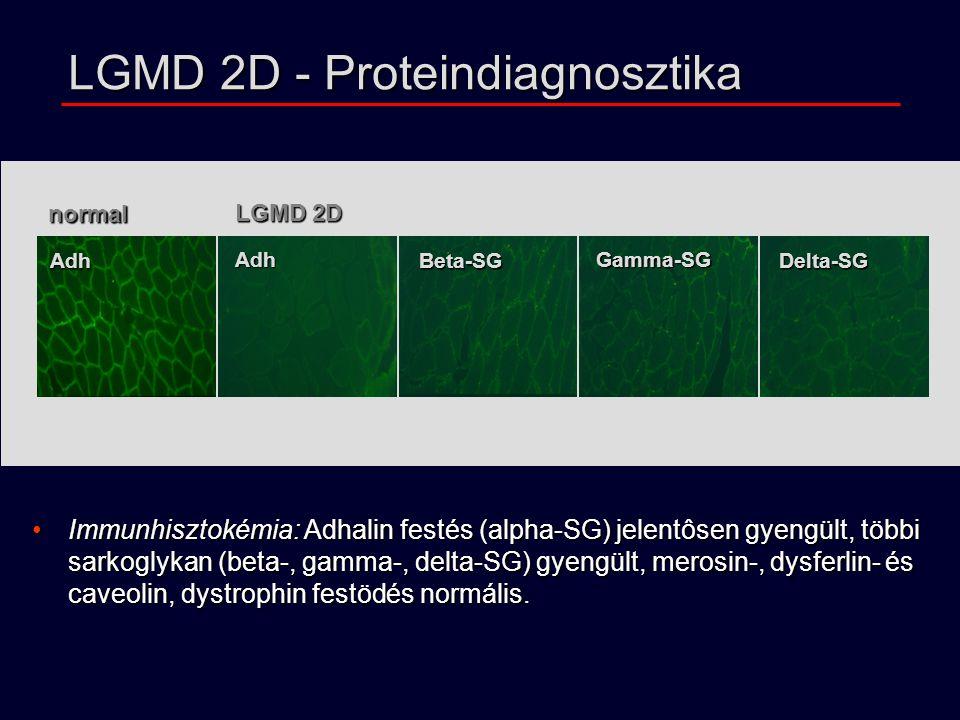 normal LGMD 2D Adh Adh Beta-SG Gamma-SG Delta-SG Immunhisztokémia: Adhalin festés (alpha-SG) jelentôsen gyengült, többi sarkoglykan (beta-, gamma-, delta-SG) gyengült, merosin-, dysferlin- és caveolin, dystrophin festödés normális.Immunhisztokémia: Adhalin festés (alpha-SG) jelentôsen gyengült, többi sarkoglykan (beta-, gamma-, delta-SG) gyengült, merosin-, dysferlin- és caveolin, dystrophin festödés normális.