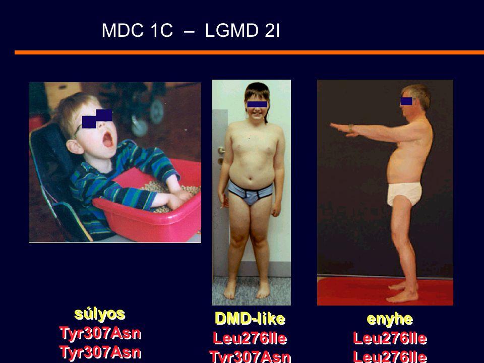 MDC 1C – LGMD 2I DMD-like Leu276Ile Tyr307Asn DMD-like Leu276Ile Tyr307Asn enyhe Leu276Ile enyhe Leu276Ile súlyos Tyr307Asn súlyos Tyr307Asn