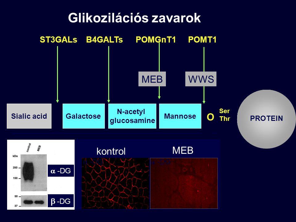 Ser Thr PROTEIN O Mannose N-acetyl glucosamine GalactoseSialic acid 1212 1414 2323 POMT1POMGnT1B4GALTsST3GALs MEBWWS kontrol MEB  -DG  -DG  -DG Glikozilációs zavarok