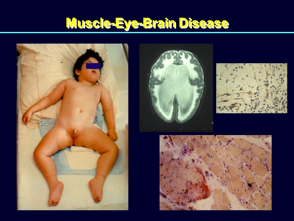 Muscle-Eye-Brain Disease