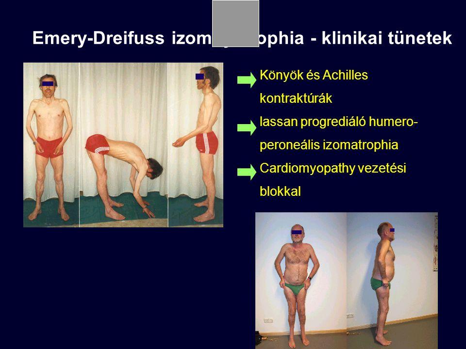 Emery-Dreifuss izomdystrophia - klinikai tünetek Könyök és Achilles kontraktúrák lassan progrediáló humero- peroneális izomatrophia Cardiomyopathy vezetési blokkal