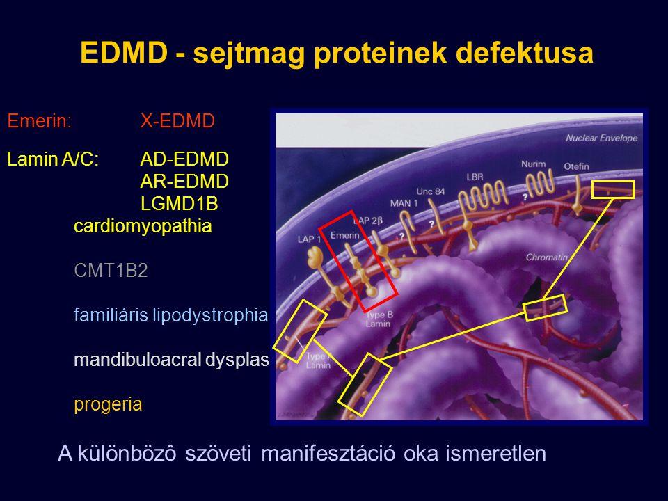 Emerin: X-EDMD EDMD - sejtmag proteinek defektusa A különbözô szöveti manifesztáció oka ismeretlen Lamin A/C: AD-EDMD AR-EDMD LGMD1B cardiomyopathia CMT1B2 familiáris lipodystrophia mandibuloacral dysplasia progeria