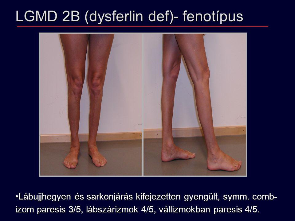 LGMD 2B (dysferlin def)- fenotípus Lábujjhegyen és sarkonjárás kifejezetten gyengült, symm. comb-Lábujjhegyen és sarkonjárás kifejezetten gyengült, sy