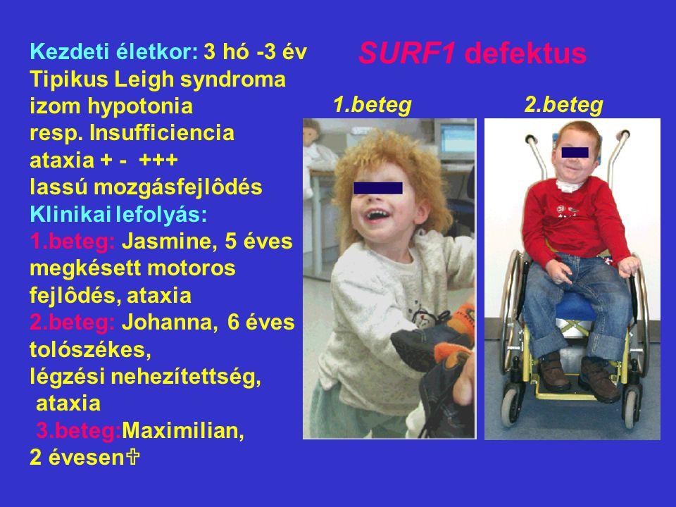 SURF1 defektus Kezdeti életkor: 3 hó -3 év Tipikus Leigh syndroma izom hypotonia resp. Insufficiencia ataxia + - +++ lassú mozgásfejlôdés Klinikai lef