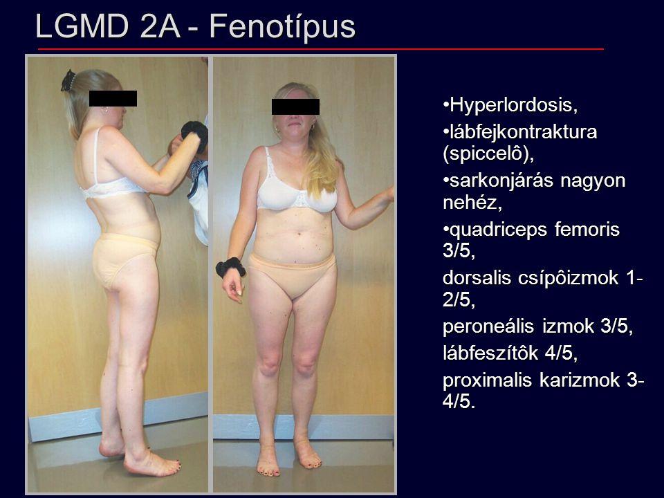 LGMD 2A - Fenotípus Hyperlordosis,Hyperlordosis, lábfejkontraktura (spiccelô),lábfejkontraktura (spiccelô), sarkonjárás nagyon nehéz,sarkonjárás nagyon nehéz, quadriceps femoris 3/5,quadriceps femoris 3/5, dorsalis csípôizmok 1- 2/5, peroneális izmok 3/5, lábfeszítôk 4/5, proximalis karizmok 3- 4/5.