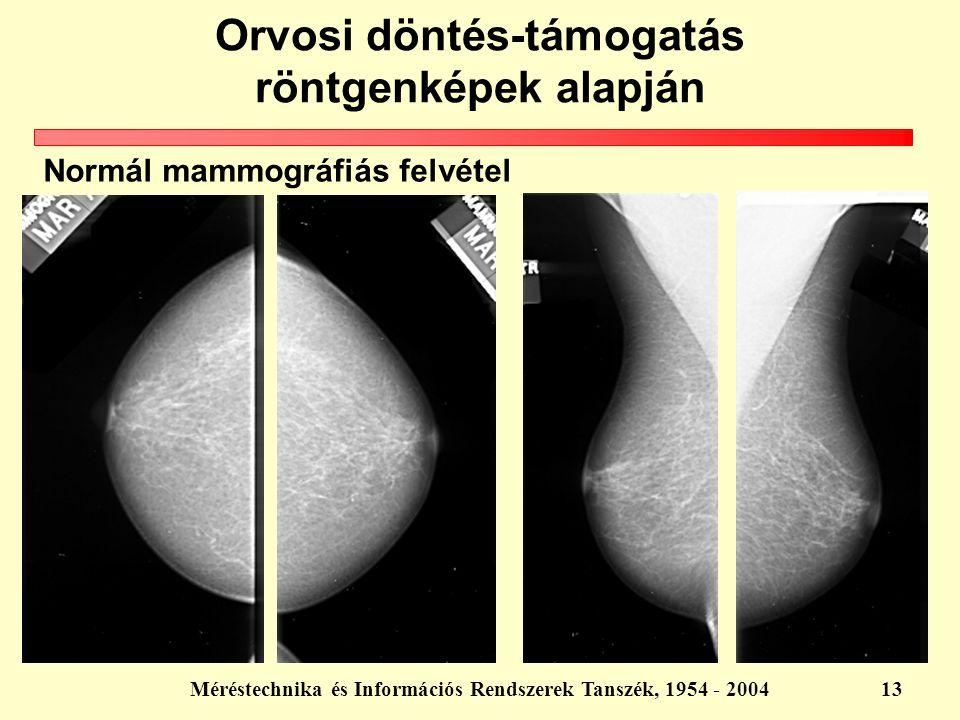 Méréstechnika és Információs Rendszerek Tanszék, 1954 - 200413 Orvosi döntés-támogatás röntgenképek alapján Normál mammográfiás felvétel