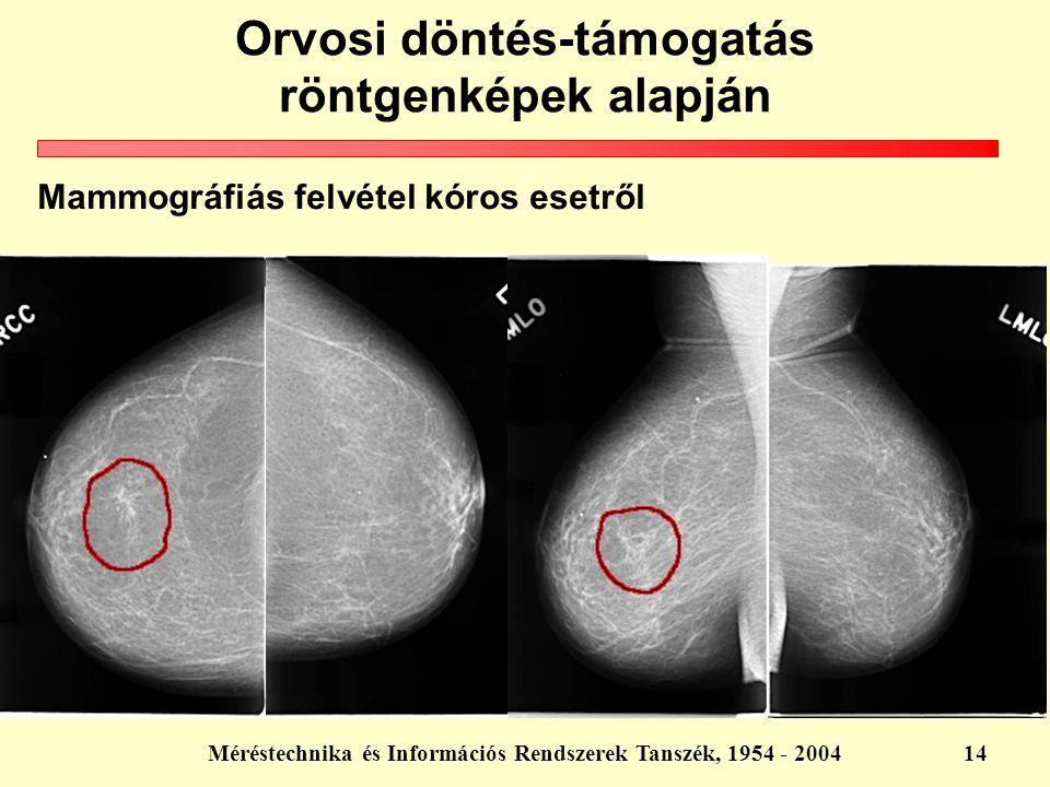 Méréstechnika és Információs Rendszerek Tanszék, 1954 - 200414 Mammográfiás felvétel kóros esetről Orvosi döntés-támogatás röntgenképek alapján